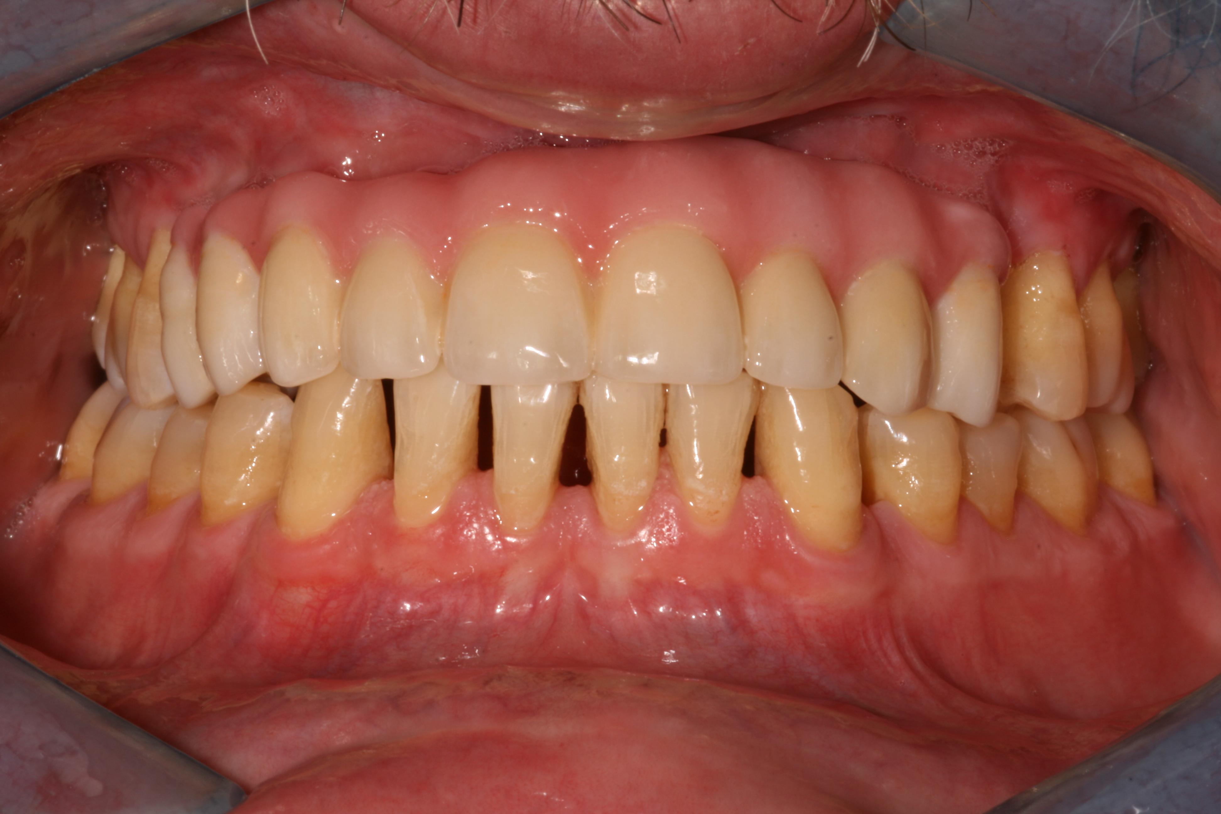 Implantologia Depois