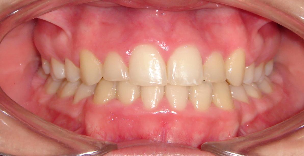 Ortodontia Depois