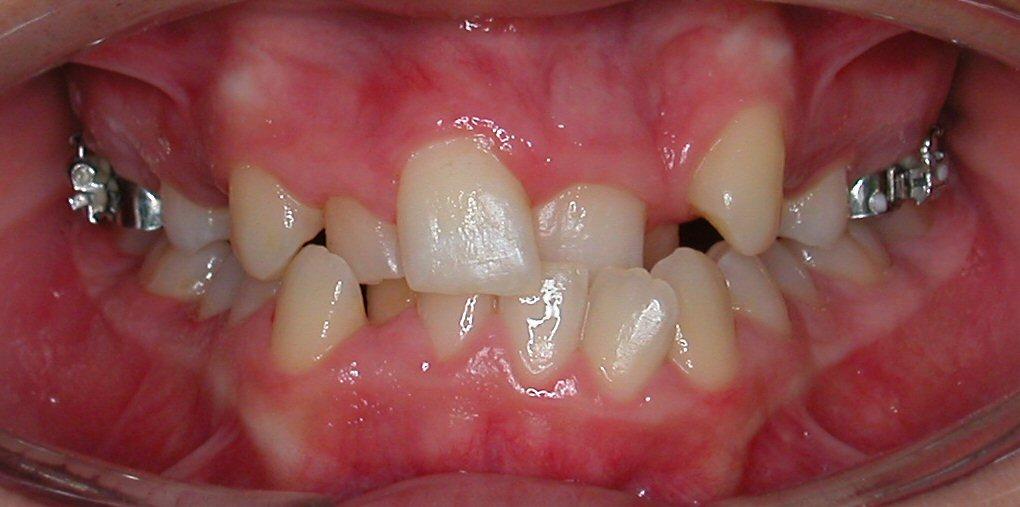 Ortodontia Antes
