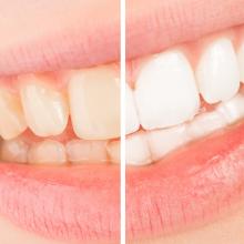 Branqueamento Dentário – tudo o que precisa saber
