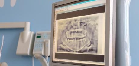Cáries Dentárias: O que são e como prevenir?