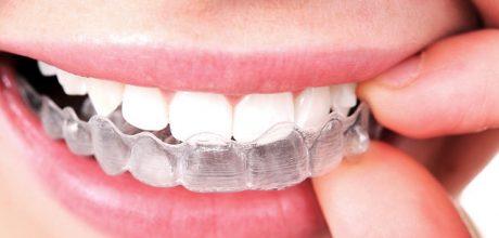 Invisalign: Conheça o aparelho dentário invisível