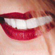 Branqueamento dentário: 5 dicas para manter os dentes brancos